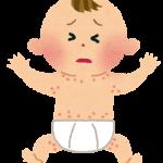 赤ちゃんの発疹(顔、足、背中、お腹)対処法!熱なしや赤くないときも